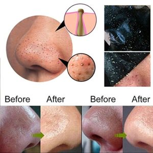 how to use charcoal blackhead remval mask