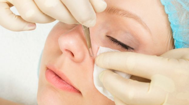 Blackhead treatment and Skin care tips