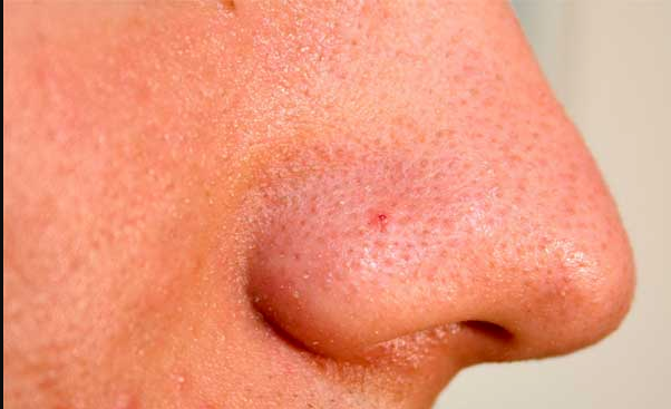 how to clean pores on nose