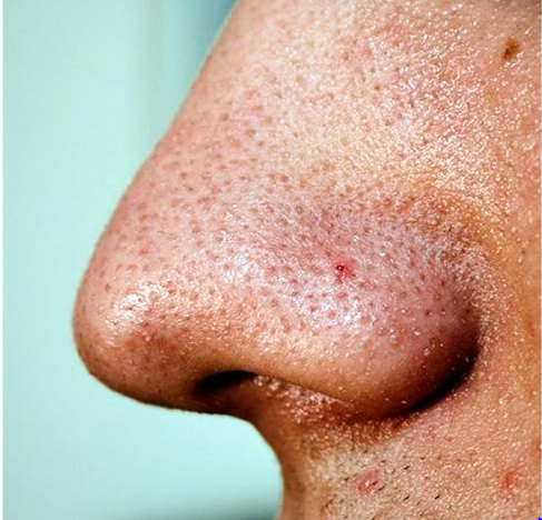 blackhead removal on the nose
