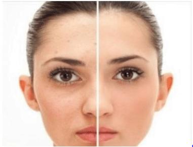 exfoliate face