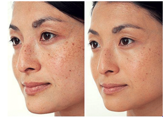 how to prevent post inflammatory hyperpigmentation