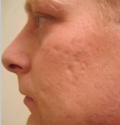 Acne to remove